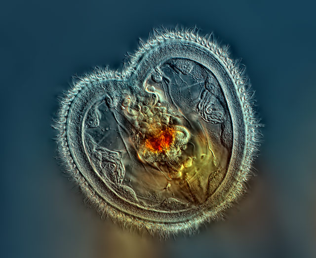 2014 Nikon winner Subject Matter: Rotifer showing the mouth interior and heart shaped corona (40x) Rogelio Moreno Gill